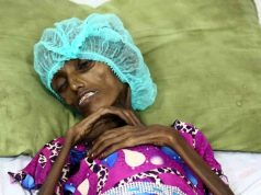Saida Ahmad Baghili, une Yéménite de 18 ans photographiée en octobre, est victime de malnutrition (AFP).