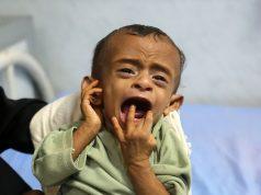 fr.shafaqna - Yémen: 5.000 enfants tués ou blessés du fait de la guerre, selon l'Unicef