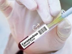 vaccin chinois, coronavirus, Tunisie, Afrique